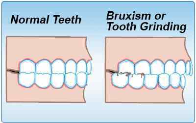 Teeth Grinding Linked To Sleep Apnea; Bruxism Prevalent In ...