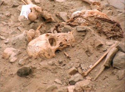 stock-footage-medium-shot-of-human-bones-lying-in-an-archeological-site